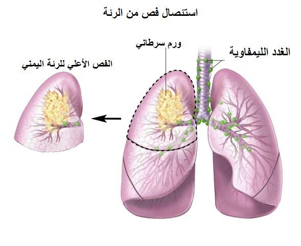 استئصال فص من الرئة