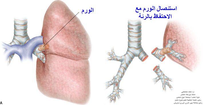 علاج ورم الكارسينويد