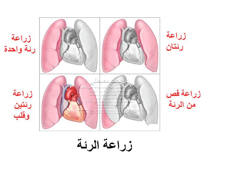ما بعد زراعة الرئة